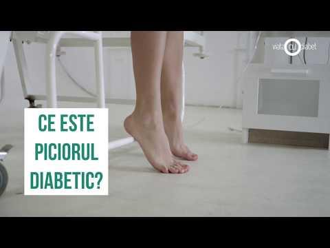 Tratați articulațiile picioarelor