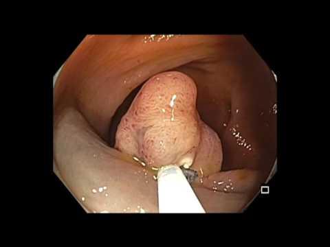 Colonoscopy: Cecum EMR