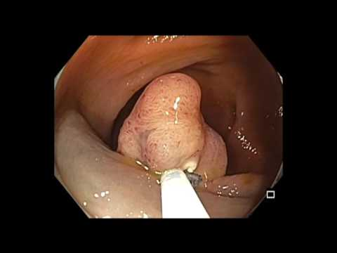 Kolonoskopia: EMR polipa kątnicy