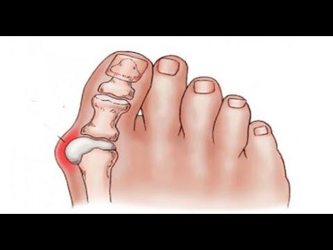 Geschwollene Gelenke an den Beinen, was zu tun