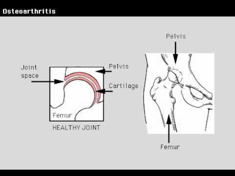 Térd artrózisának kezelése kézi terápiával