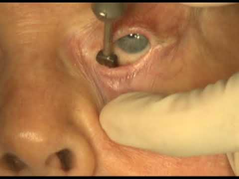 Cancer patient abdominal surgery