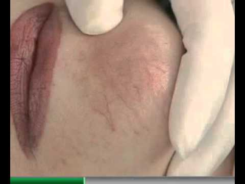 Cum pot ameliora durerile articulare și musculare