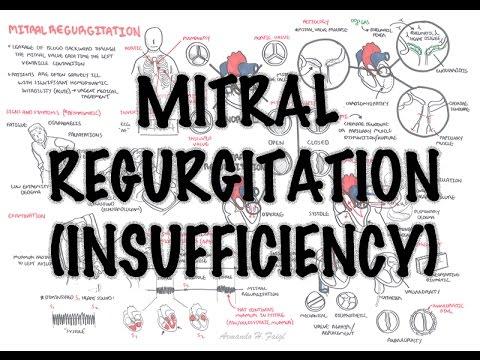 Niedomykalność mitralna (objawy, patofizjologia, leczenie)