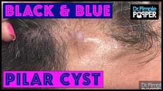 A Black & Blue Pilar Cyst