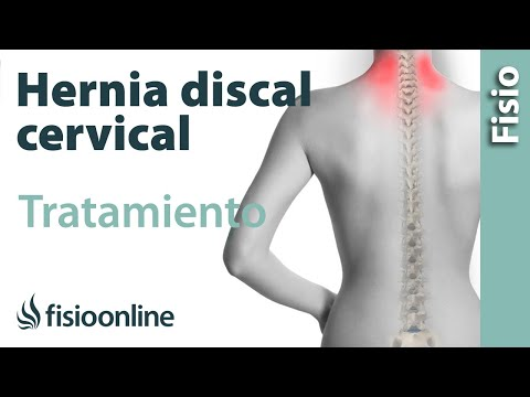 Síndrome de la arteria en la columna cervical