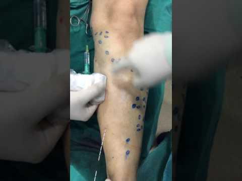 Czy możliwe jest, aby ogrzać zakrzepowe zapalenie żył nóg