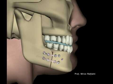 Meccanoterapia articolazione dellanca passiva