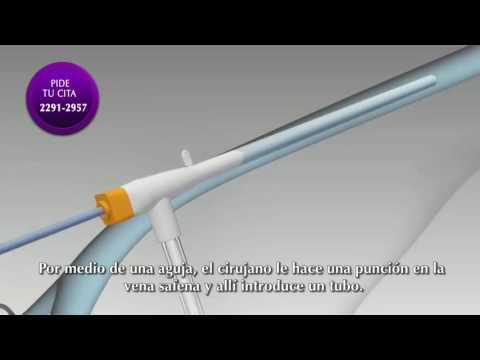 Animación 3D sobre radiofrecuencia de varices