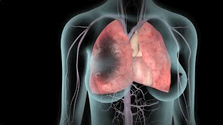 DVT and Pulmonary Embolism | Nucleus Health