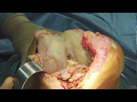 Gli angoli delle articolazioni dellanca