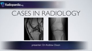 Cases in Radiology: Episode 4 (musculoskeletal, MRI, x-ray)