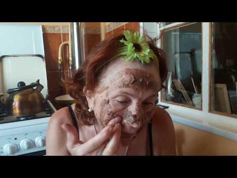 Заболевания кожи пигментные пятна