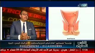 الناس الحلوة | أمراض الشرج مع د محمد مجدي النجار