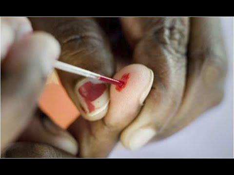 Paraziți hepatici la om