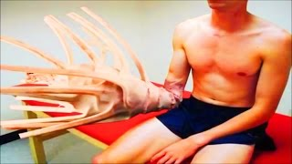 Incredible Hand Cyst! Real or Fake? Tree Man & 30 Pound Lipoma