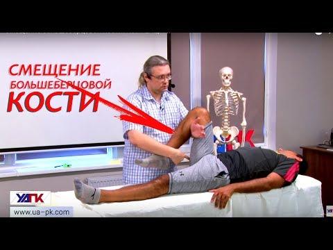 Смещение большеберцовой кости: КОРРЕКЦИЯ!