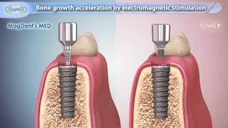 Bone Growth Acceleration by Electromagnetic Stimulation