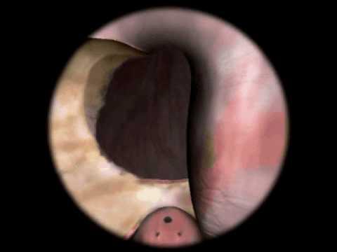Odstranitev prostatičnega adenokarcinoma
