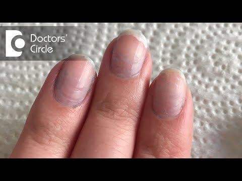 Video What causes bluish discoloration of nail beds? - Dr. Rashmi Ravindra