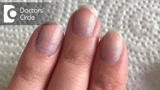 What Causes Bluish Discoloration Of Nail Beds? - Dr. Rashmi Ravindra