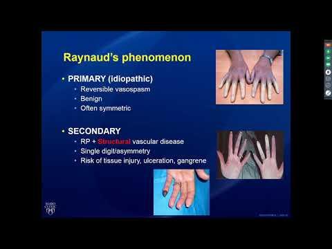 Reumatologiczne spojrzenie na twardzinę układową