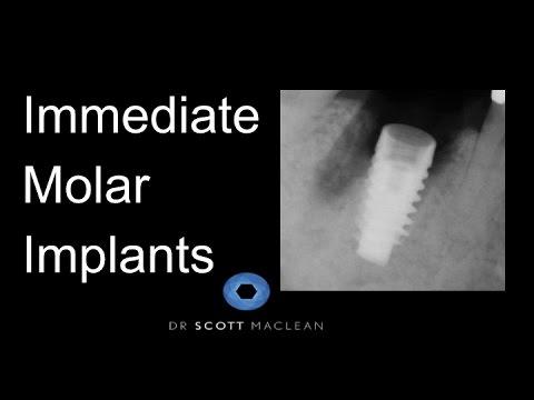 ASC Abutment - Why on an implant molar?