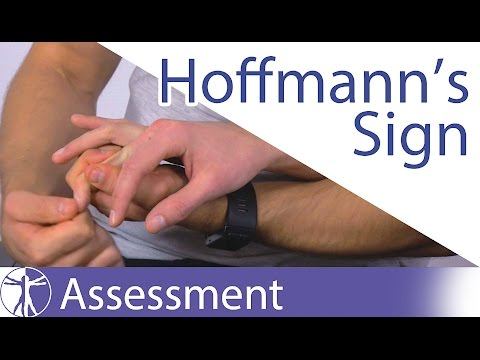 Video Hoffmann's Sign or Reflex | Upper Motor Neuron Lesion