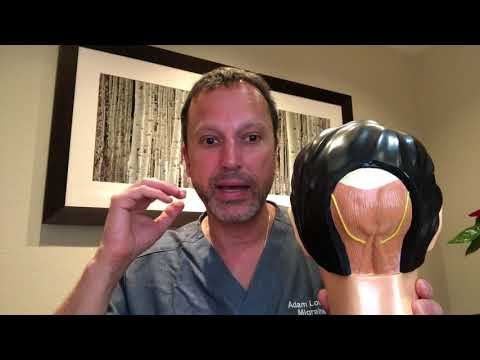 Dr. Lowenstein Discusses Migraine Surgery Occipital Symptoms