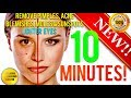 REMOVE DARK SPOTS, BLEMISHES, ACNE, MOLES & GET LIGHTER EYES IN 10 MINUTES! SUBLIMINAL AFFIRMATIONS