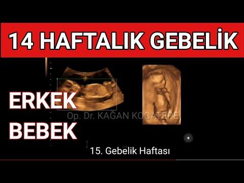 14 haftalık erkek bebek ultrasonda nasıl görünür? -Doğum kanalına yakın yerleşmiş (plasenta previa)