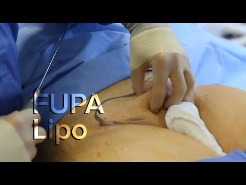 Zsírégető stimulerex