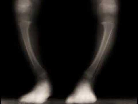 Stati danimo Sytina sulle articolazioni delle gambe