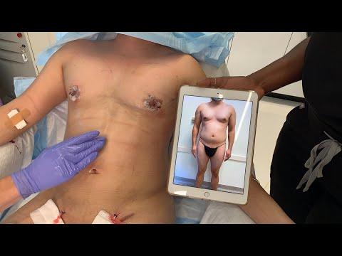 Wymiary normalnego penisa