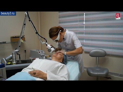 Лазерная операция глаз в бресте