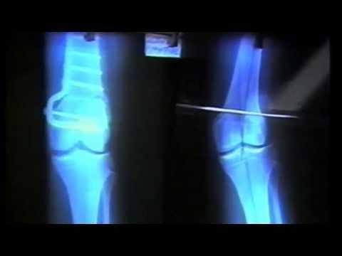 Palpitazioni di notte con osteocondrosi