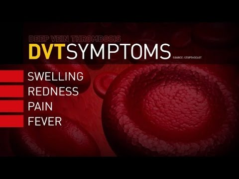 Al dolobena a thrombophlebitis
