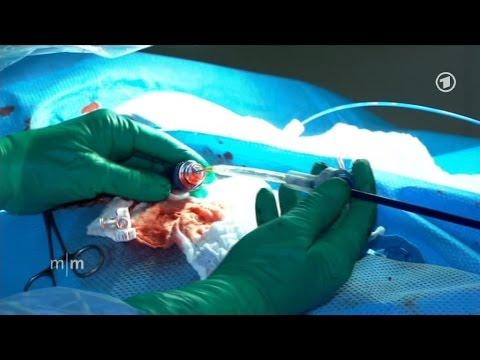 Die Thrombophlebitis Vene auf der Hand die Behandlung