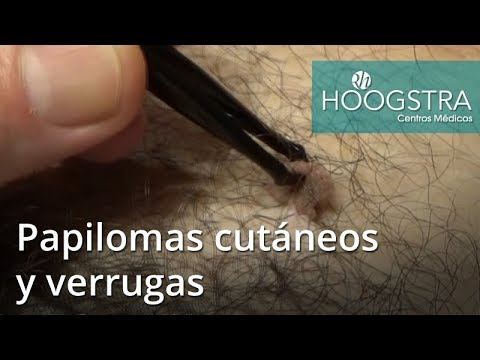 Papiloma humano ppt