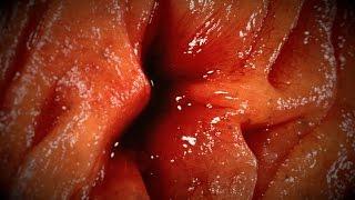 Forgotten Medical Sponge Wreaks Havoc in Man's Intestines