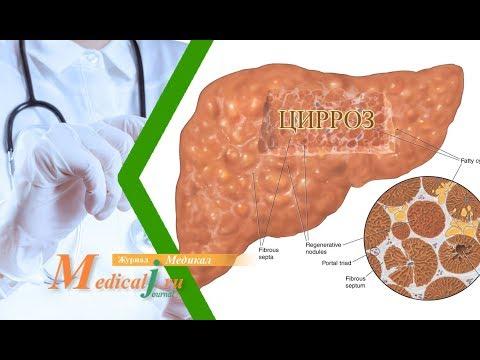Болиголов лечение рака поджелудочной печени