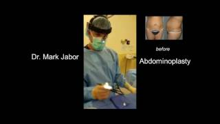 Dr. Mark Jabor - Abdominoplasty (Tummy tuck) in El Paso, TX
