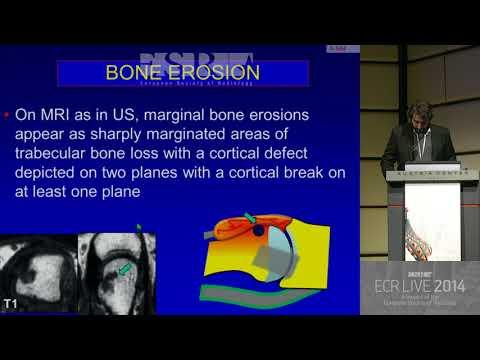 Deteriorarea ligamentelor articulației umărului