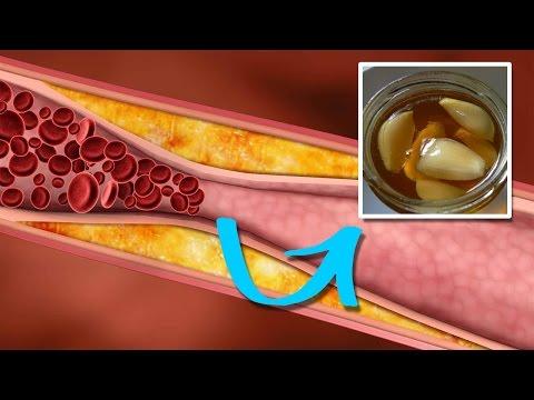 Diabetes-Diät auf die Insulin