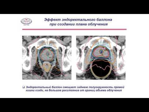 Предстательная железа структура изменена