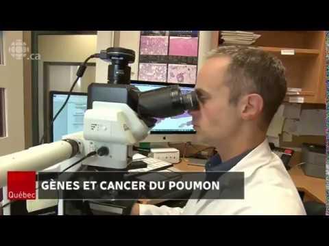 Goudron bouleau et le traitement du cancer de la prostate