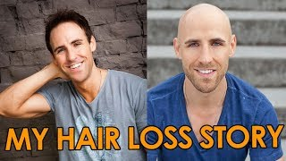 My Hair Loss Story | Going Bald Early Advice