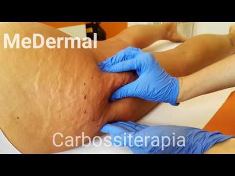 Operazione per la rimozione di un corpo estraneo dallarticolazione del ginocchio
