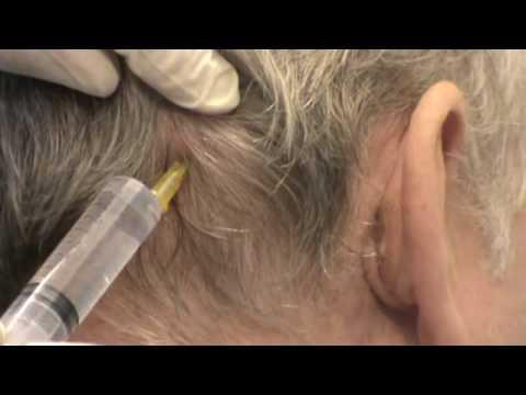 Schmerzen im unteren Rückenlenden Vitamine