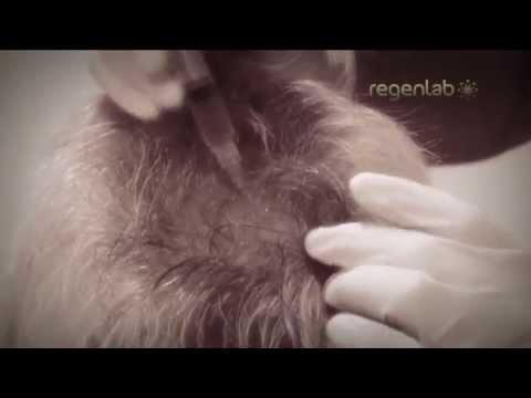 Neurovitan wypadanie włosów